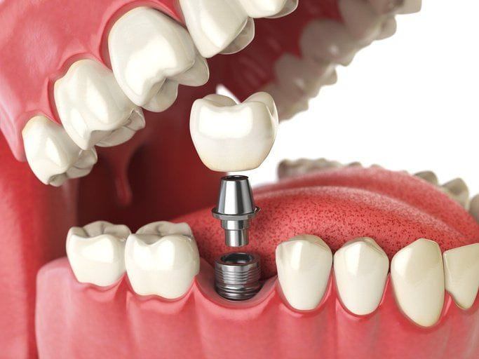 denturist training